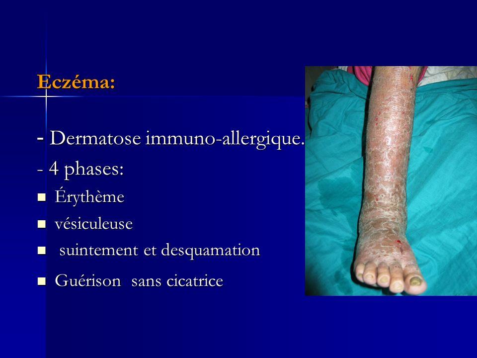 Eczéma: - Dermatose immuno-allergique. - 4 phases: Érythème Érythème vésiculeuse vésiculeuse suintement et desquamation suintement et desquamation Gué
