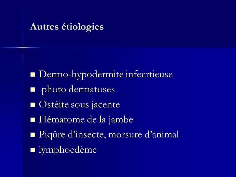 Autres étiologies Dermo-hypodermite infecrtieuse Dermo-hypodermite infecrtieuse photo dermatoses photo dermatoses Ostéite sous jacente Ostéite sous ja