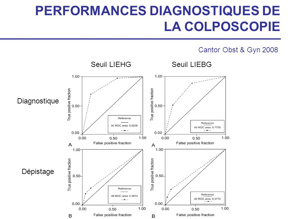 PERFORMANCES DIAGNOSTIQUES DE LA COLPOSCOPIE Cantor Obst & Gyn 2008 Diagnostique Dépistage Seuil LIEBGSeuil LIEHG