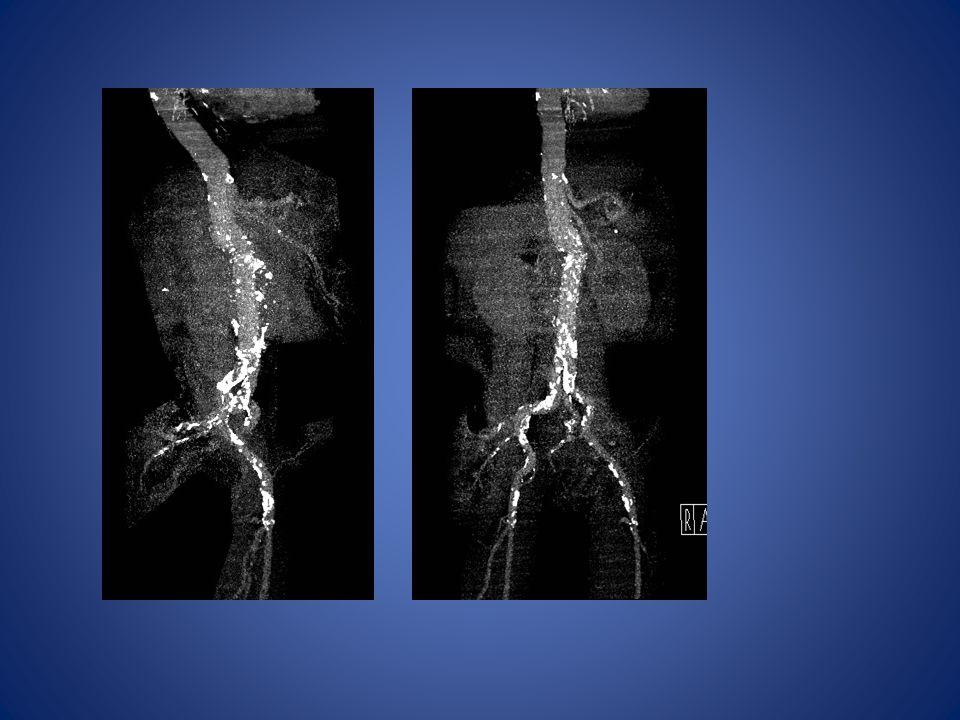 GESTION POLYVASCULAIRE Cas clinique(2) Homme 58 ans Alcoolo-tabagique, dyslipidémie Revascularisation des 2 M.I : stents 2 axes iliaques, trépied fémoral gauche, PFP x 2 Dilatation coronaire Douleurs précordiales : coronarographie : stents actifs sur coronaire droite Ischémie MID occlusion PFP J50 AFLBC 2012