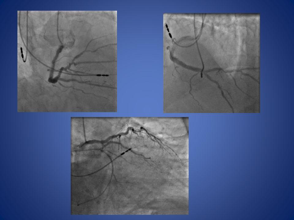 GESTION POLYVASCULAIRE Cas clinique(2) Bilan MI : angio-IRM 13 mois auparavant : angio-scanner Occlusion iliaque, FCD et PFP droit Lésions carrefour viscéral Angio-scanner TSA : sténose CC+CIG pontage Intervention : arrêt plavix : J4 pontage trépied, recanalisation iliaque (cross-over), stent aorte AFLBC 2012