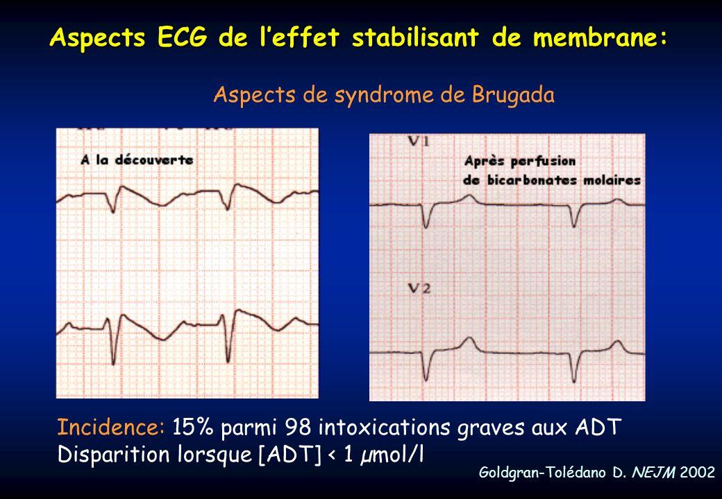 Aspects ECG de leffet stabilisant de membrane: Aspects de syndrome de Brugada Goldgran-Tolédano D. NEJM 2002 A la découverte: Incidence: 15% parmi 98