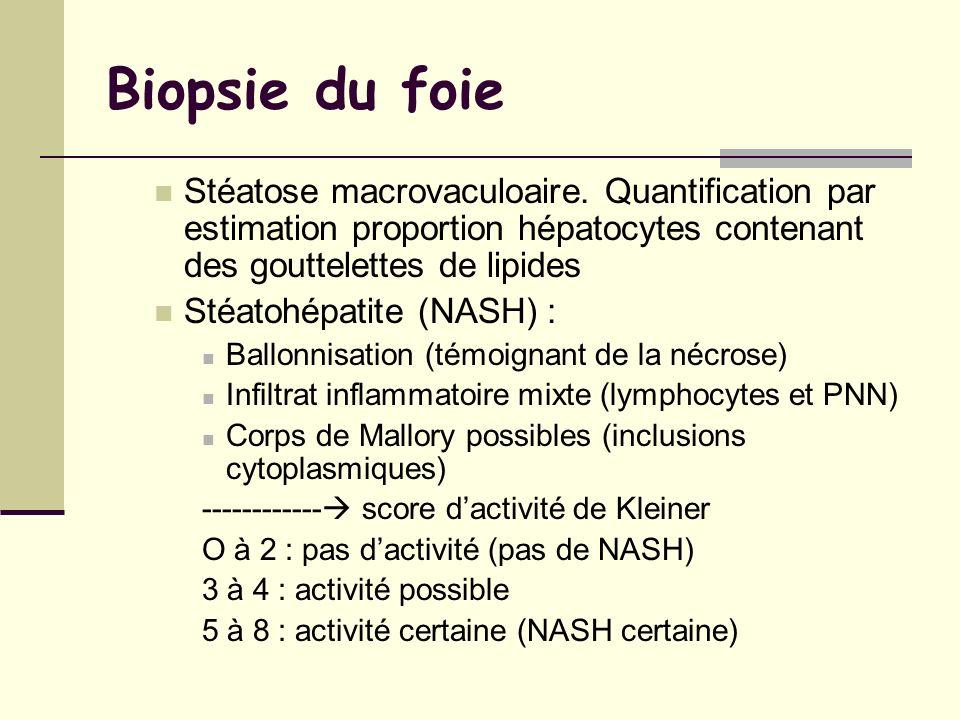 Biopsie du foie Stéatose macrovaculoaire. Quantification par estimation proportion hépatocytes contenant des gouttelettes de lipides Stéatohépatite (N