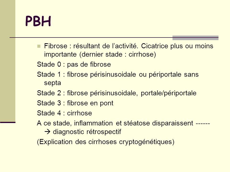 PBH Fibrose : résultant de lactivité. Cicatrice plus ou moins importante (dernier stade : cirrhose) Stade 0 : pas de fibrose Stade 1 : fibrose périsin