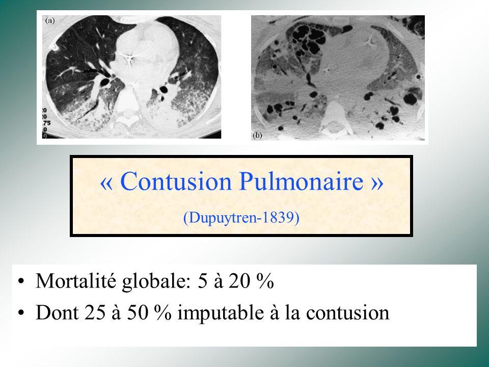 Contusions Pulmonaires Dr B. Leroy Réanimation Chirurgicale Hopital Huriez