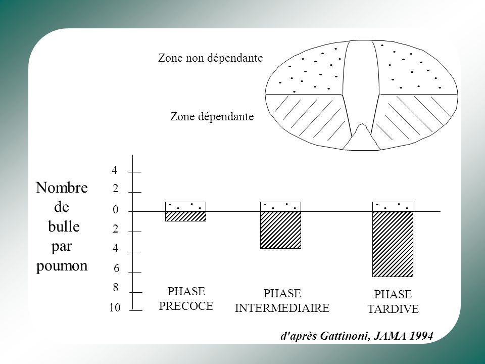 West JB, AJP Lung, 2003. Stress circonferentiel (PTM) Tension linéaire