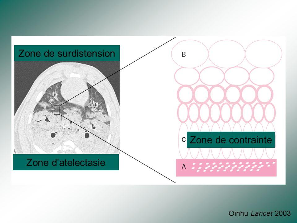 Zone non dépendante Zone dépendante Nombre de bulle par poumon 4 2 0 2 4 6 8 10 PHASE PRECOCE PHASE INTERMEDIAIRE PHASE TARDIVE d'après Gattinoni, JAM