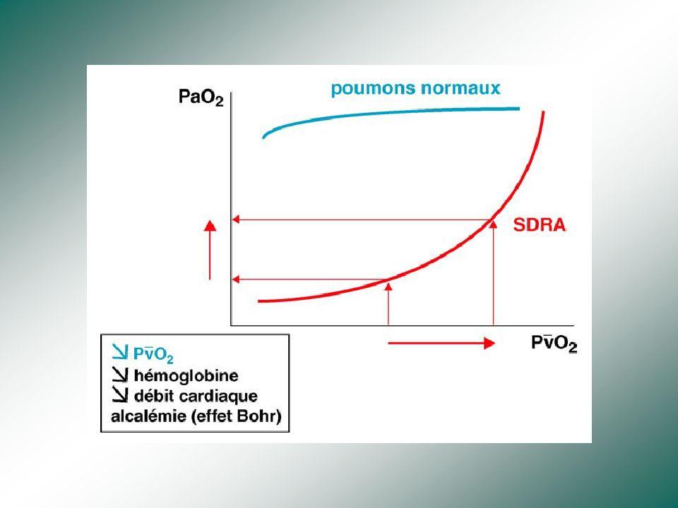 Critères dune volémie adaptée… Pression artérielle / diurèse Fréquence cardiaque…. PVC Delta PP…. Echocardiographie… Sv O2…