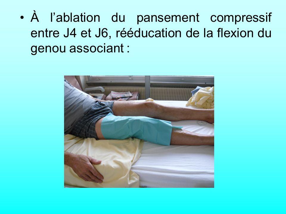 À lablation du pansement compressif entre J4 et J6, rééducation de la flexion du genou associant :