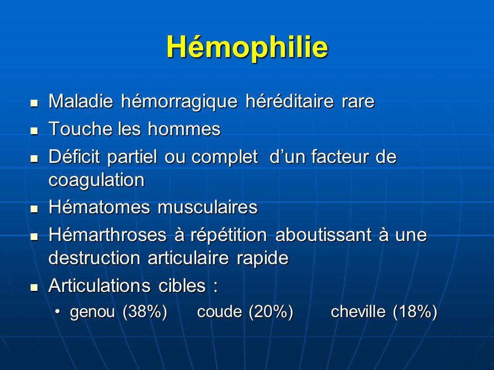 Hémophilie Maladie hémorragique héréditaire rare Maladie hémorragique héréditaire rare Touche les hommes Touche les hommes Déficit partiel ou complet