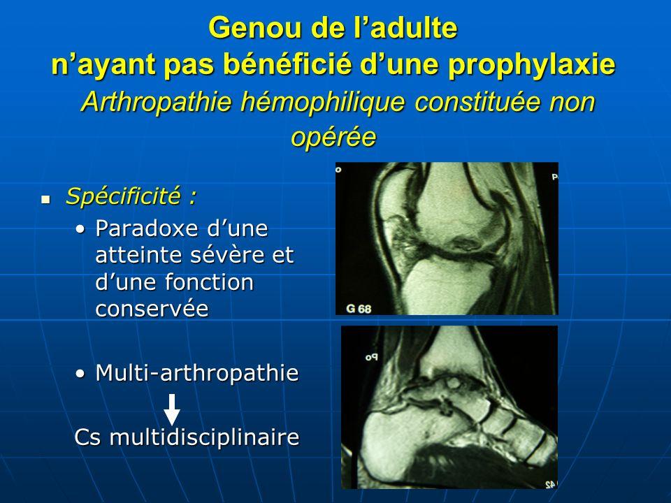 Genou de ladulte nayant pas bénéficié dune prophylaxie Arthropathie hémophilique constituée non opérée Spécificité : Spécificité : Paradoxe dune attei