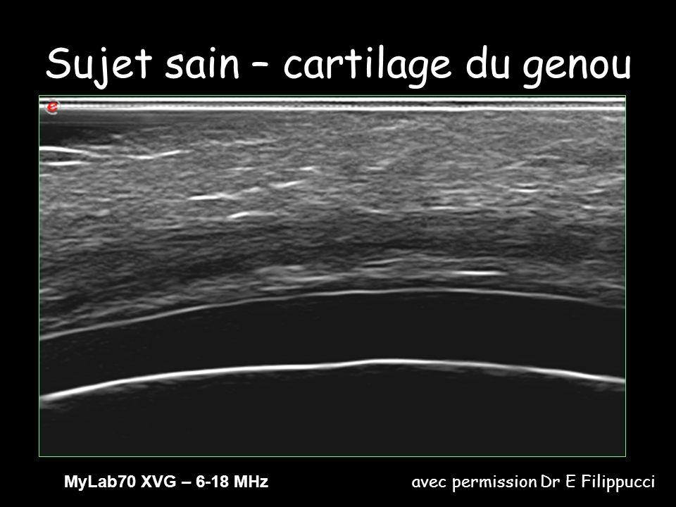 IRM et images echographiques en Doppler couleur montrent les tophus comme des masses entourees par une zone hypervasculaire, non specifique pour la goutte.