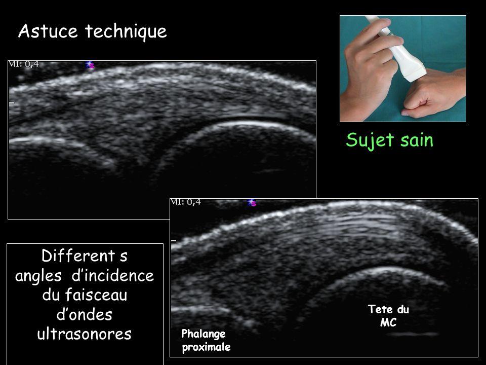 Sujet sain Resolution basse Aspect homogene Condyle femoral Résolution Haute avec permission Dr E Filippucci