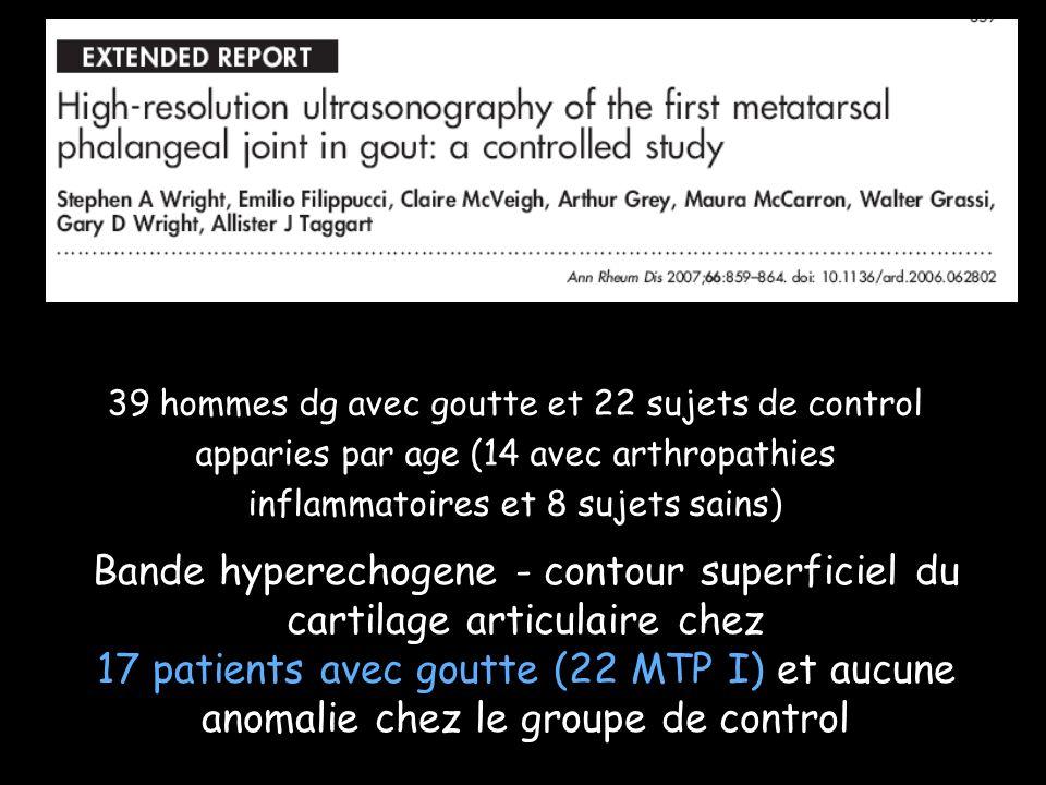 37 articulations symptomatiques, 23 patients avec goutte (diagnostic fait par ponction et mise en evidence des cristaux) Presence dune bande hyperechogene au niveau du bord superficiel du cartilage articulaire dans 92% articulations examinees et aucune dans le groupe control (p<0.001)