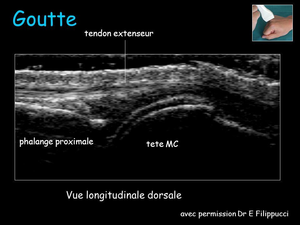 Depots durate Goutte tete MC phalange proximale Vue longitudinale dorsale avec permission Dr E Filippucci
