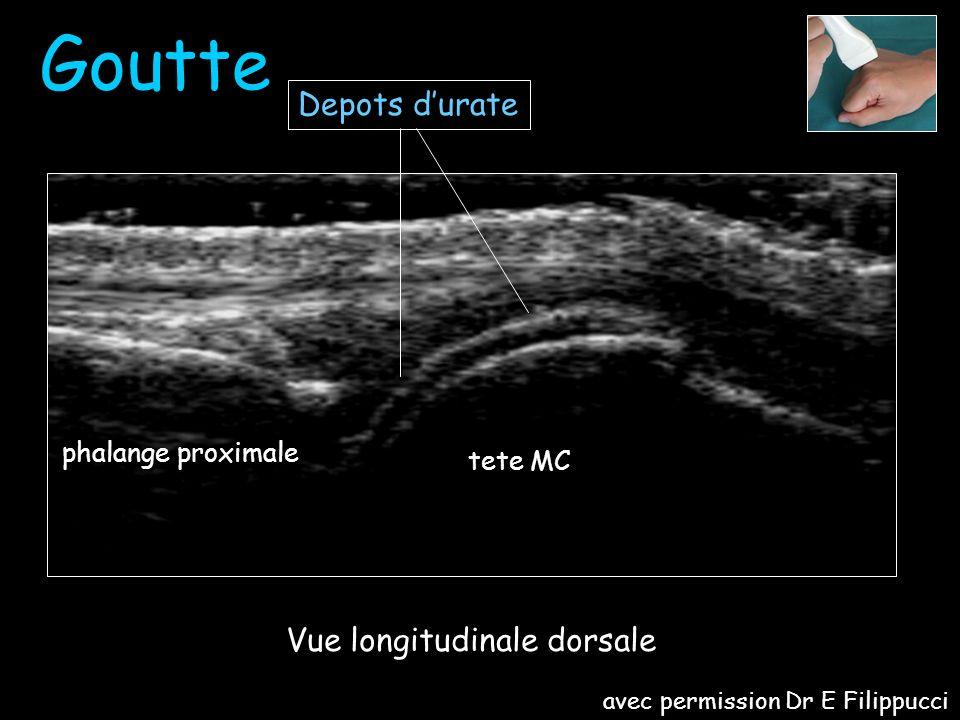 Goutte MCP II avec permission Dr E Filippucci
