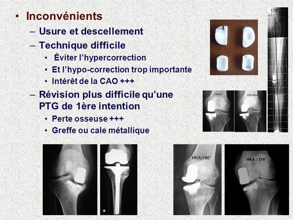 Inconvénients –Usure et descellement –Technique difficile Éviter lhypercorrection Et lhypo-correction trop importante Intérêt de la CAO +++ –Révision plus difficile quune PTG de 1ère intention Perte osseuse +++ Greffe ou cale métallique
