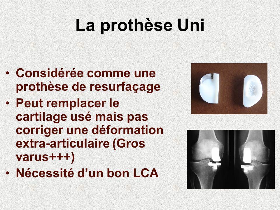 La prothèse Uni Considérée comme une prothèse de resurfaçage Peut remplacer le cartilage usé mais pas corriger une déformation extra-articulaire (Gros varus+++) Nécessité dun bon LCA