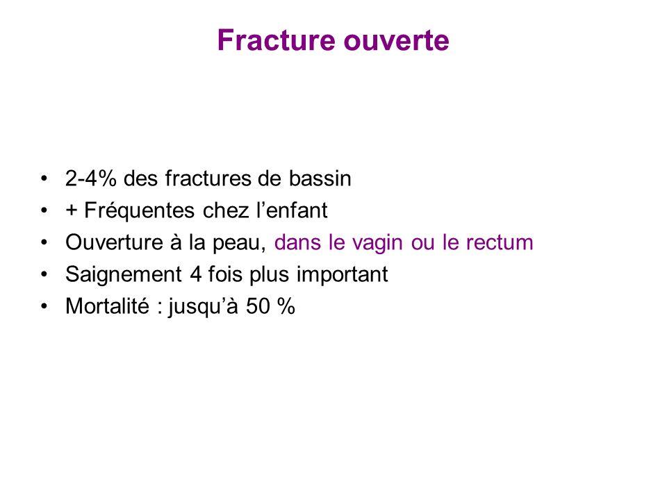 Fracture ouverte 2-4% des fractures de bassin + Fréquentes chez lenfant Ouverture à la peau, dans le vagin ou le rectum Saignement 4 fois plus importa