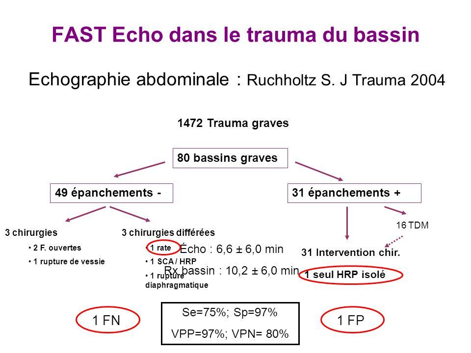FAST Echo dans le trauma du bassin Echographie abdominale : Ruchholtz S. J Trauma 2004 1472 Trauma graves 80 bassins graves 49 épanchements -31 épanch