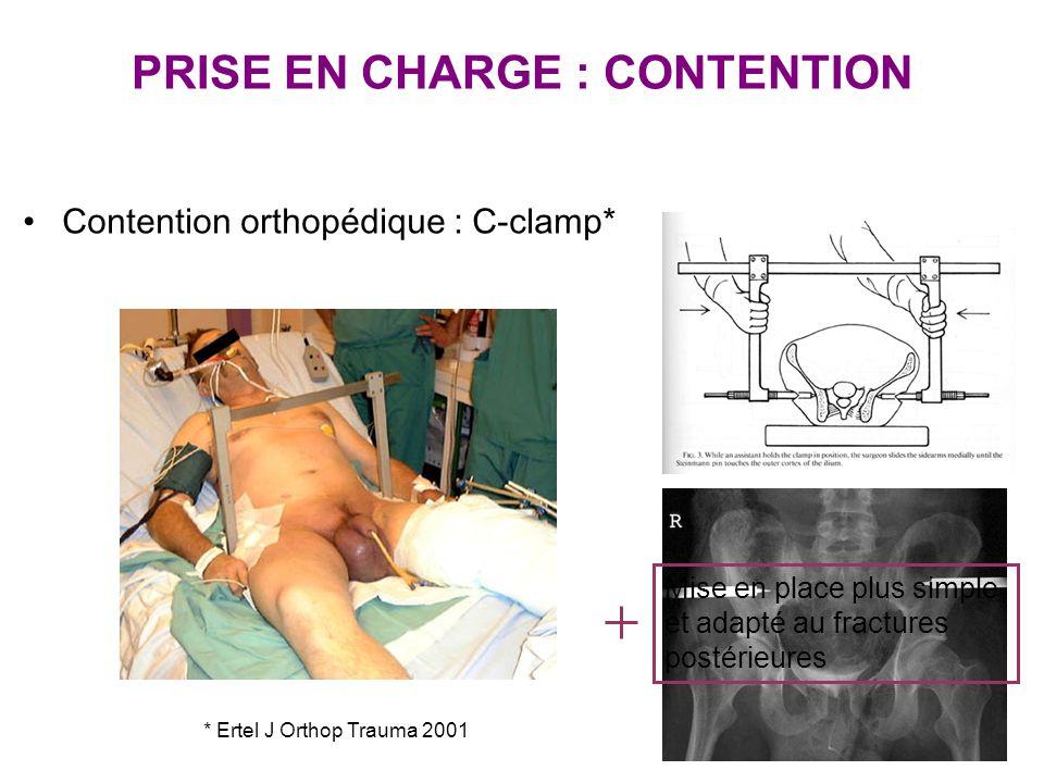 PRISE EN CHARGE : CONTENTION Contention orthopédique : C-clamp* * Ertel J Orthop Trauma 2001 Mise en place plus simple et adapté au fractures postérie