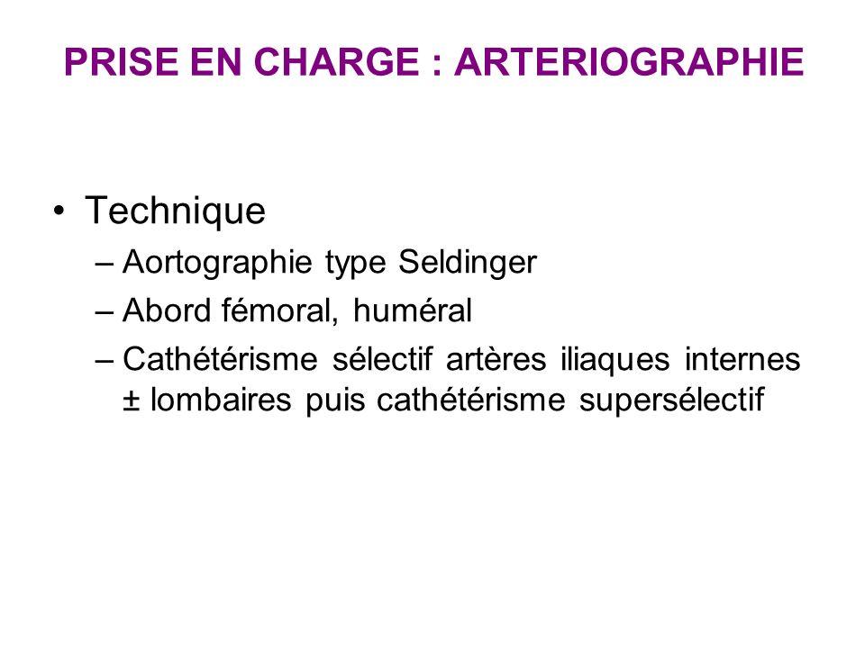 PRISE EN CHARGE : ARTERIOGRAPHIE Technique –Aortographie type Seldinger –Abord fémoral, huméral –Cathétérisme sélectif artères iliaques internes ± lom