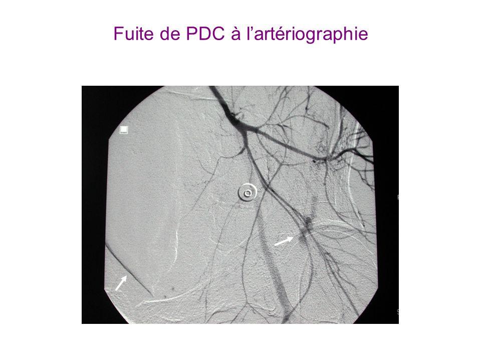 Fuite de PDC à lartériographie * IS