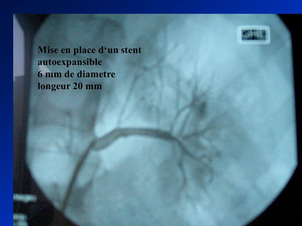 Mise en place dun stent autoexpansible 6 mm de diametre longeur 20 mm
