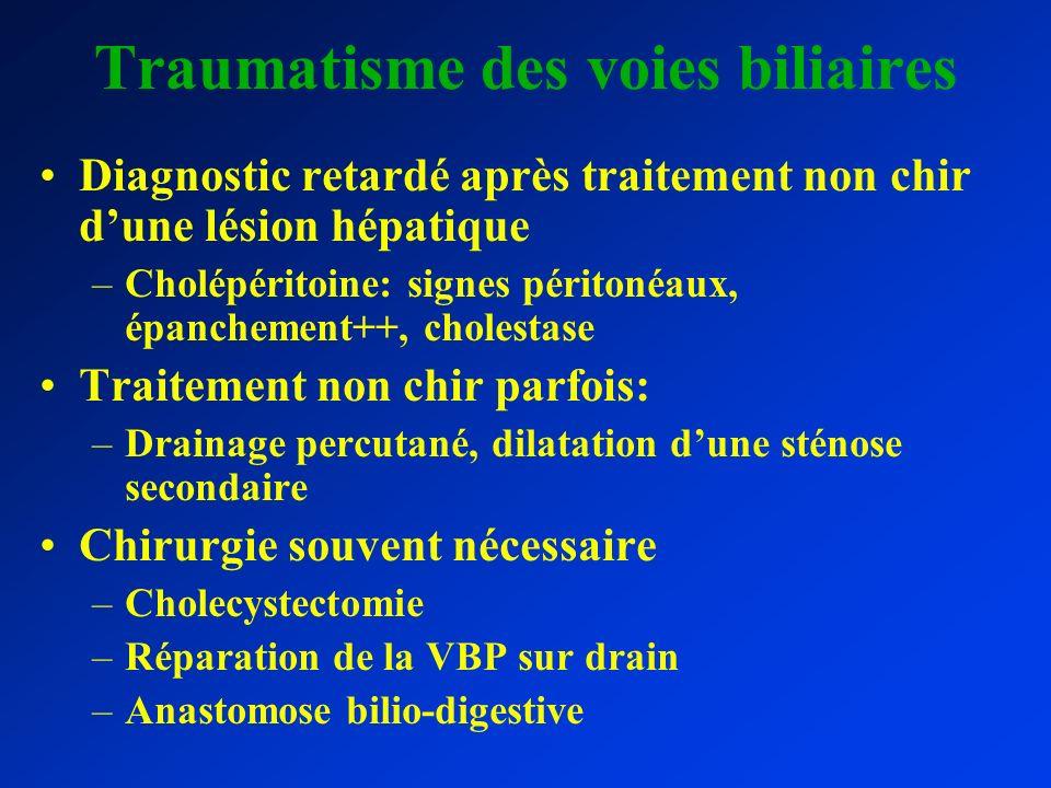 Traumatisme des voies biliaires Diagnostic retardé après traitement non chir dune lésion hépatique –Cholépéritoine: signes péritonéaux, épanchement++,