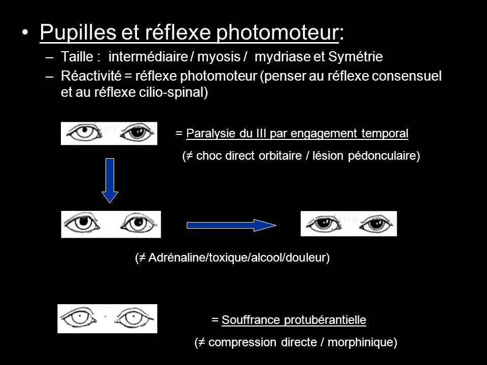 Pupilles et réflexe photomoteur: –Taille : intermédiaire / myosis / mydriase et Symétrie –Réactivité = réflexe photomoteur (penser au réflexe consensu
