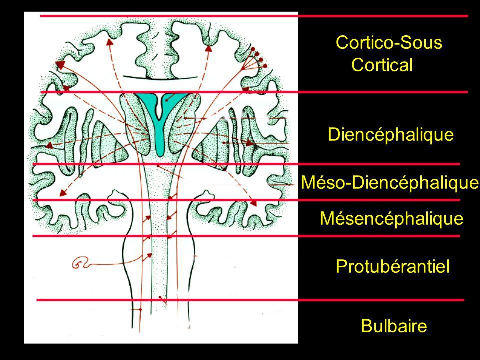 Cortico-Sous Cortical Diencéphalique Mésencéphalique Protubérantiel Méso-Diencéphalique Bulbaire