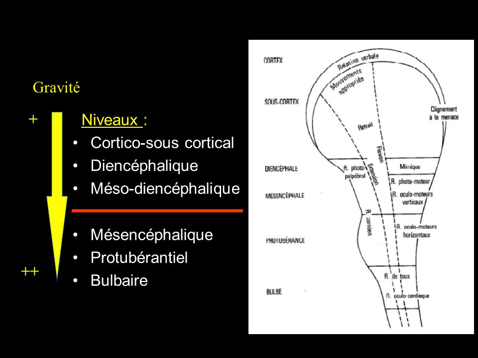 Niveaux : Cortico-sous cortical Diencéphalique Méso-diencéphalique Mésencéphalique Protubérantiel Bulbaire Gravité + ++
