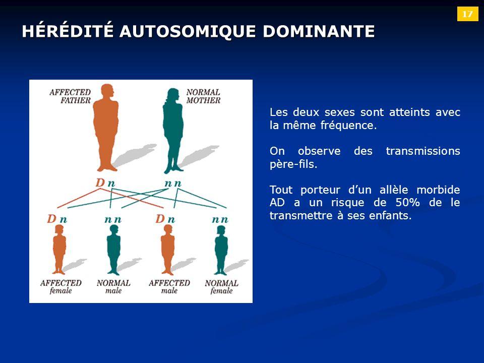 17 HÉRÉDITÉ AUTOSOMIQUE DOMINANTE Les deux sexes sont atteints avec la même fréquence. On observe des transmissions père-fils. Tout porteur dun allèle