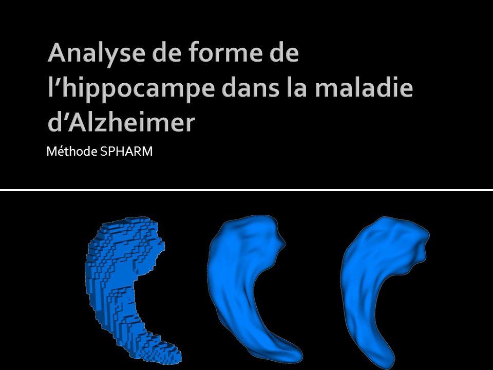 8 patients épileptiques avec sclérose de lhippocampe Comparaison des épaisseurs ipsi et contra-latérales Moyenne sur lensemble des coupes du corps 18/01/201415