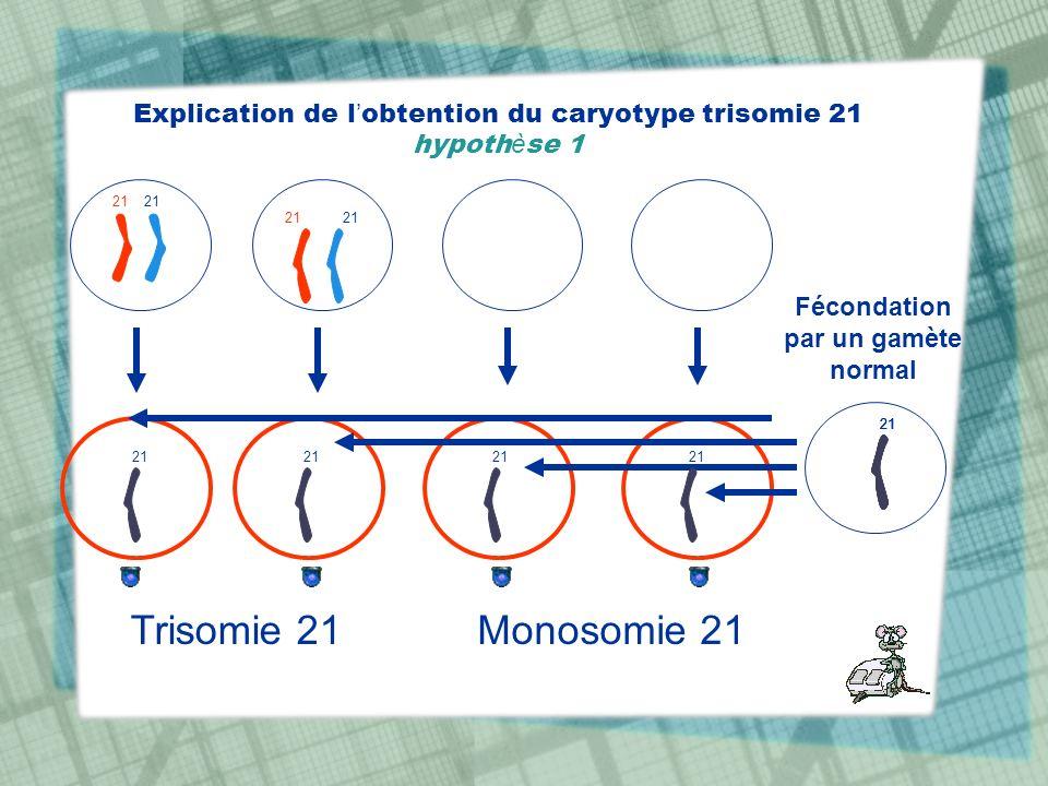 Explication de l obtention du caryotype trisomie 21 hypoth è se 1 21 Fécondation par un gamète normal 21 Trisomie 21Monosomie 21 21