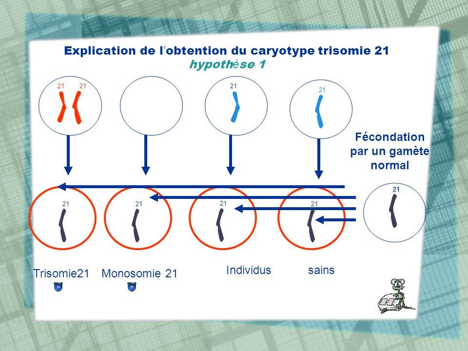 Explication de l obtention du caryotype trisomie 21 hypoth è se 1 21 Individus sains Trisomie21Monosomie 21 Fécondation par un gamète normal 21