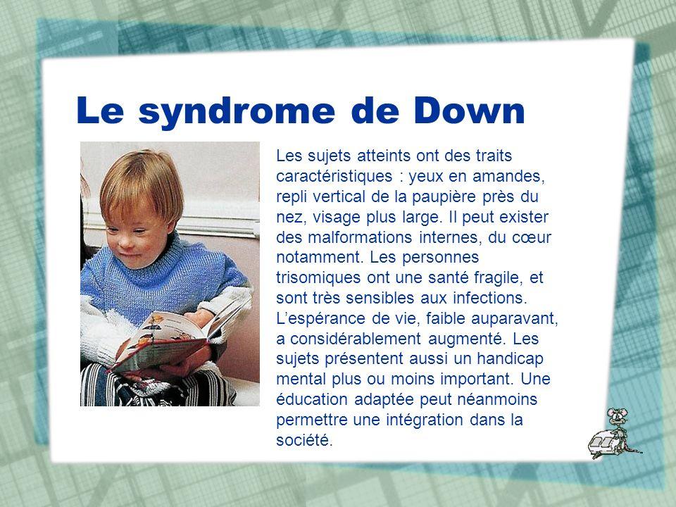 Le syndrome de Down Les sujets atteints ont des traits caractéristiques : yeux en amandes, repli vertical de la paupière près du nez, visage plus larg
