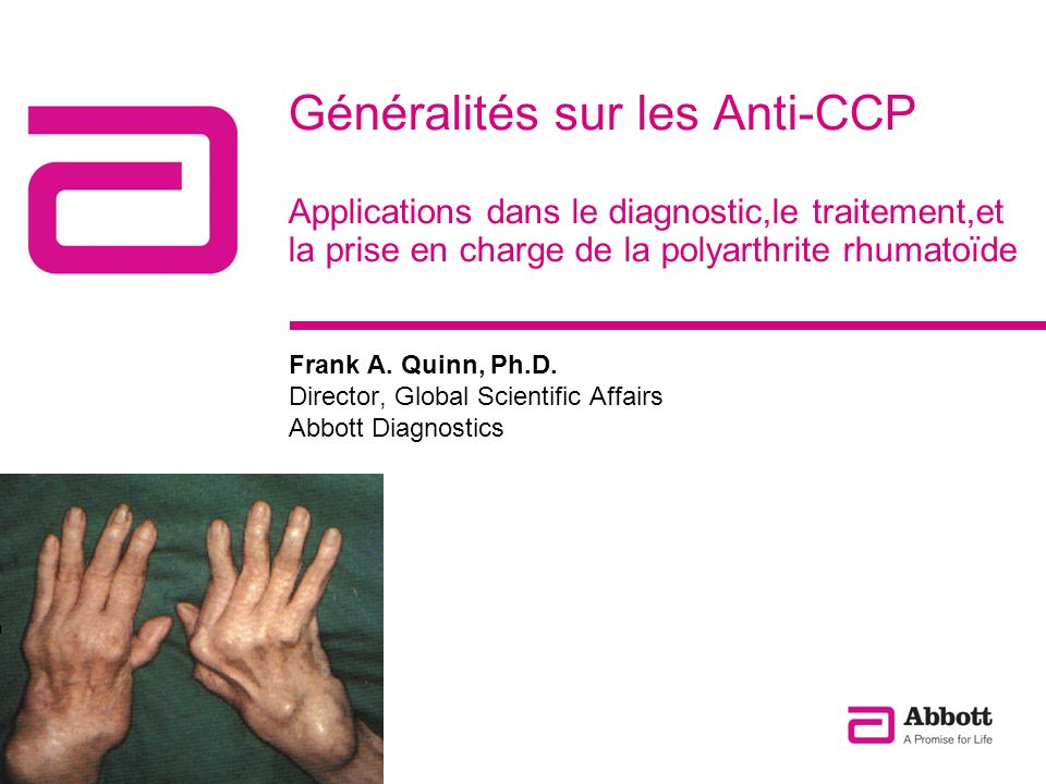 Généralités sur les Anti-CCP Applications dans le diagnostic,le traitement,et la prise en charge de la polyarthrite rhumatoïde Frank A. Quinn, Ph.D. D