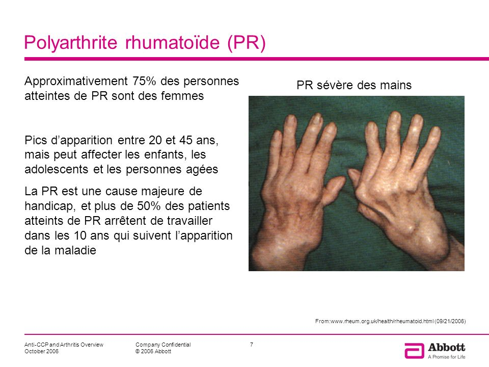 Anti-CCP and Arthritis Overview October 2006 7Company Confidential © 2006 Abbott Polyarthrite rhumatoïde (PR) Approximativement 75% des personnes atte