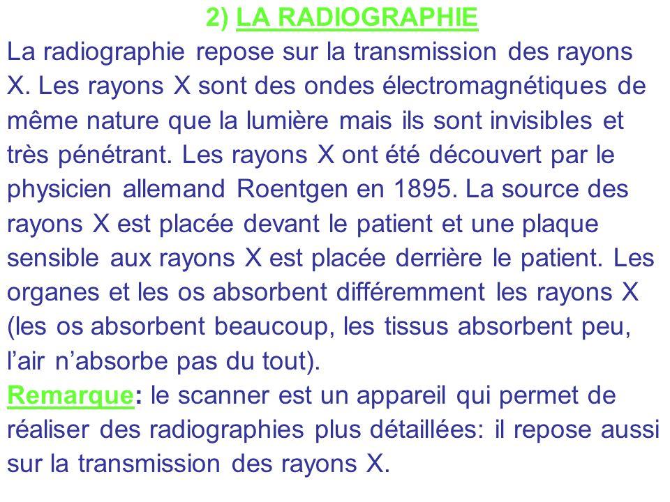 2) LA RADIOGRAPHIE La radiographie repose sur la transmission des rayons X. Les rayons X sont des ondes électromagnétiques de même nature que la lumiè