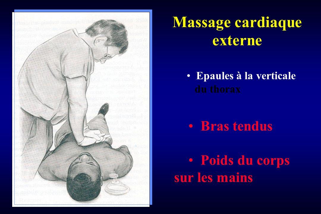 Massage cardiaque externe Epaules à la verticale du thorax Bras tendus Poids du corps sur les mains
