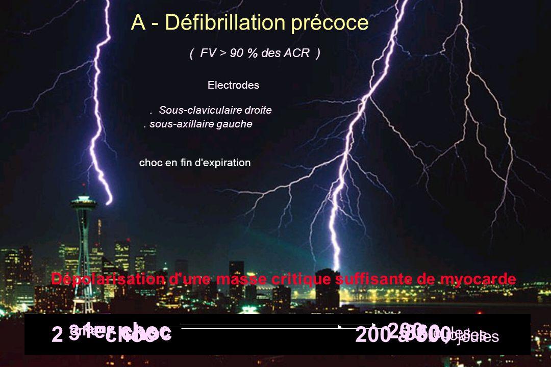 A - Défibrillation précoce choc en fin d expiration ( FV > 90 % des ACR ) Dépolarisation d une masse critique suffisante de myocarde Electrodes.