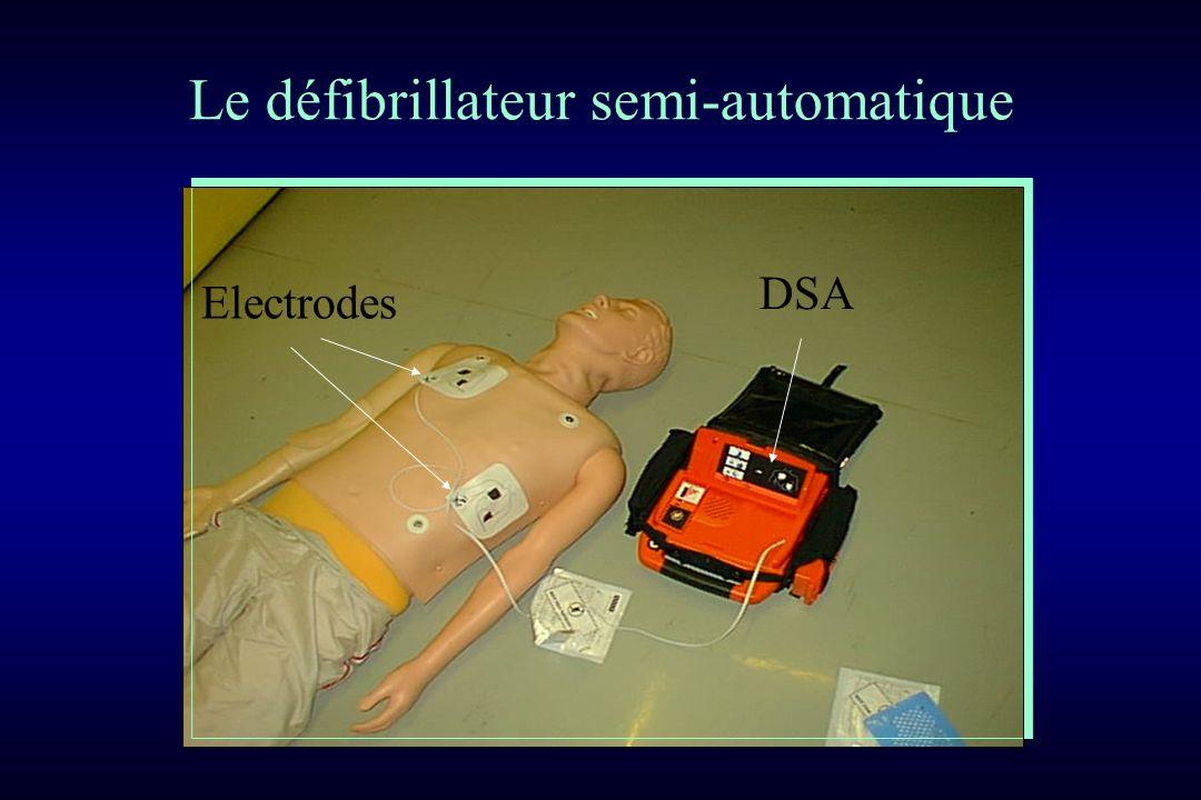 Le défibrillateur semi-automatique DSA Electrodes