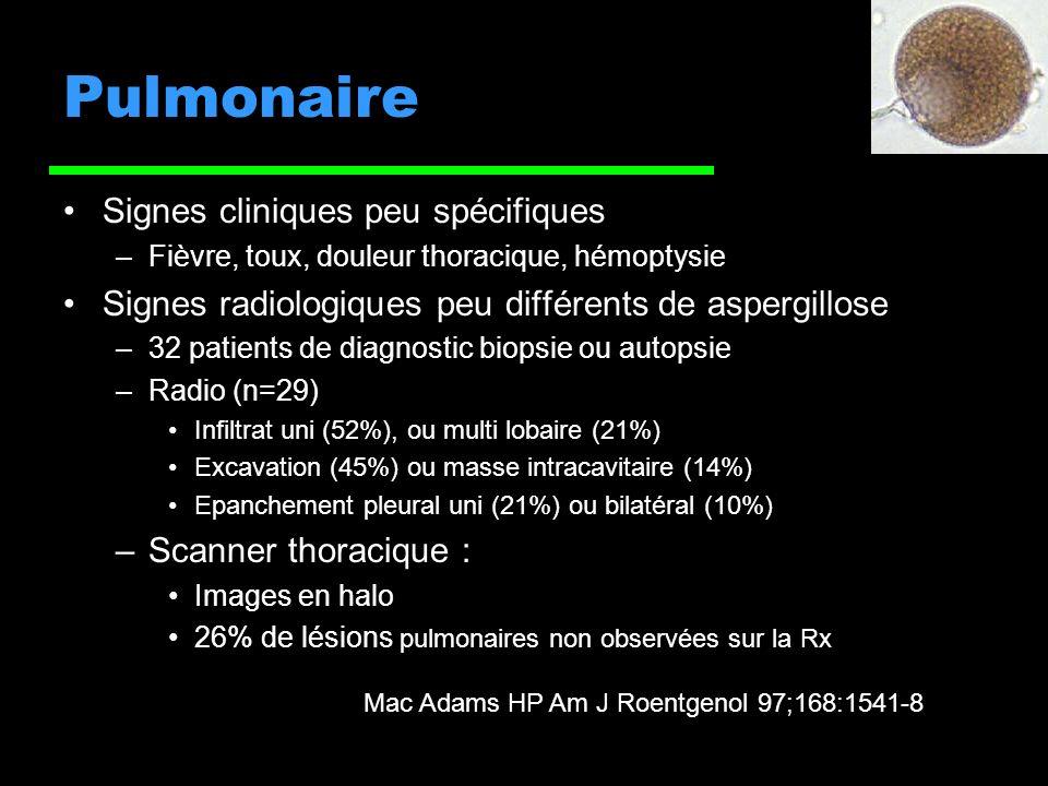 Pulmonaire Signes cliniques peu spécifiques –Fièvre, toux, douleur thoracique, hémoptysie Signes radiologiques peu différents de aspergillose –32 patients de diagnostic biopsie ou autopsie –Radio (n=29) Infiltrat uni (52%), ou multi lobaire (21%) Excavation (45%) ou masse intracavitaire (14%) Epanchement pleural uni (21%) ou bilatéral (10%) –Scanner thoracique : Images en halo 26% de lésions pulmonaires non observées sur la Rx Mac Adams HP Am J Roentgenol 97;168:1541-8