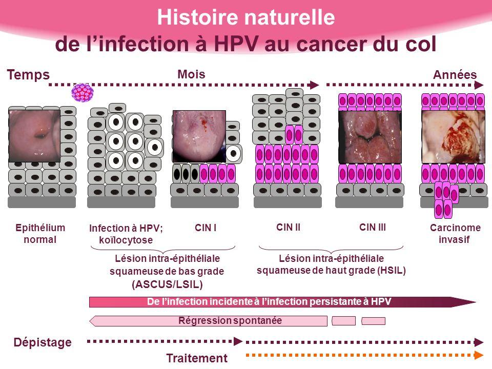 Histoire naturelle de linfection à HPV au cancer du col Lésion intra-épithéliale squameuse de bas grade (ASCUS/LSIL) Lésion intra-épithéliale squameus