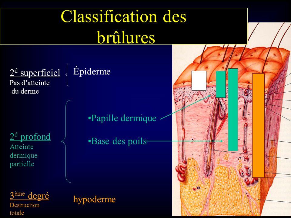 Épiderme Papille dermique Base des poils hypoderme 2 d superficiel Pas datteinte du derme 2 d profond Atteinte dermique partielle 3 ème degré Destruct