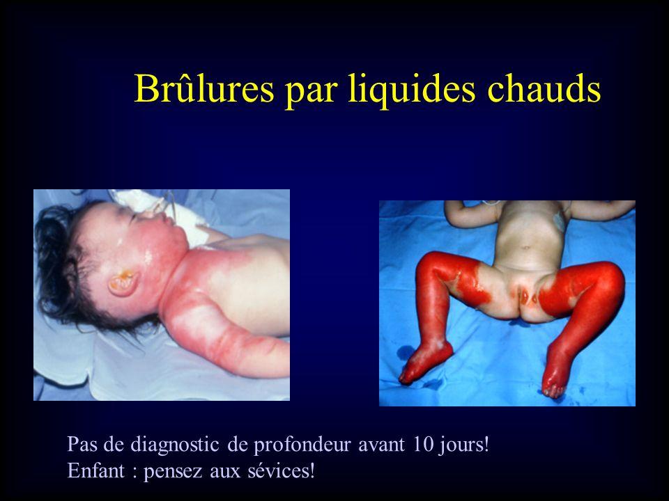 Brûlures par liquides chauds Pas de diagnostic de profondeur avant 10 jours! Enfant : pensez aux sévices!