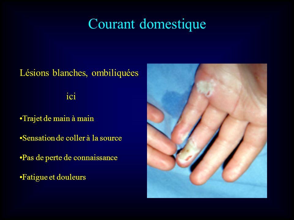 Courant domestique Lésions blanches, ombiliquées ici Trajet de main à main Sensation de coller à la source Pas de perte de connaissance Fatigue et dou