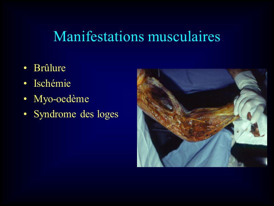 Manifestations musculaires Brûlure Ischémie Myo-oedème Syndrome des loges