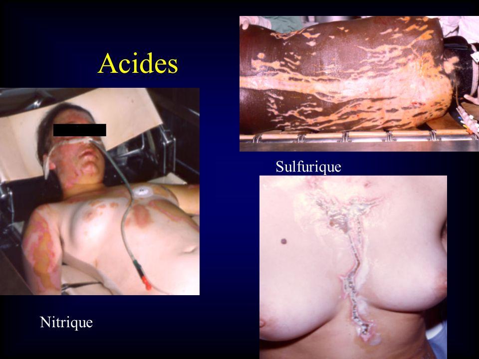Acides Nitrique Sulfurique